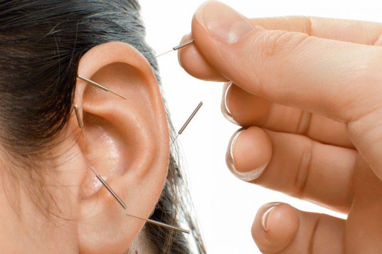 ear-acupuncture-768x512
